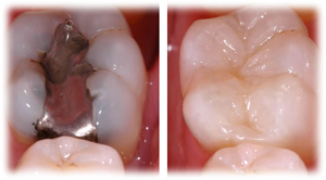 cambio amalgamas clinica dental denty smile san carlos