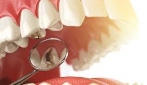 infecciones dentales-clinica-odontologica-de-chillan