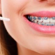 metodología Ricketts para ortodoncia